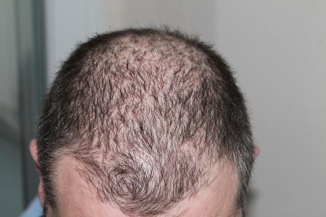 Hair Growth में कल्पामृत प्रॉडक्ट – Kalpamrit Products